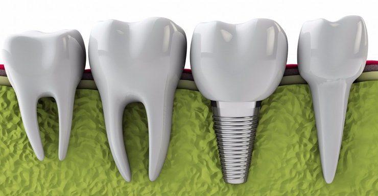 Impianto dentale? Come scegliere quello giusto