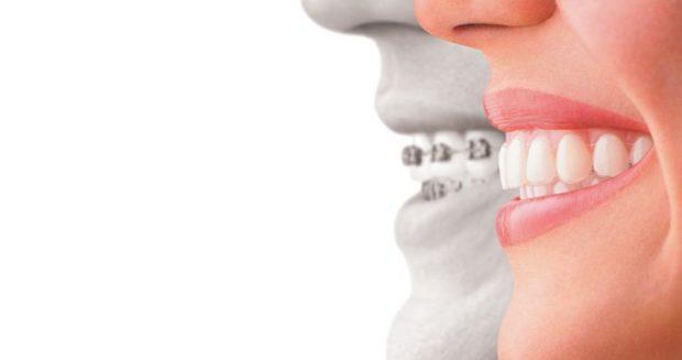 Ortodonzia su adulti