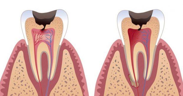 Il legame tra carie e tumore all'intestino