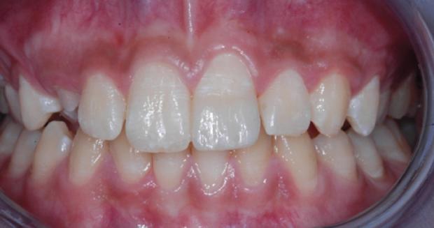 Ricostruzione dentale
