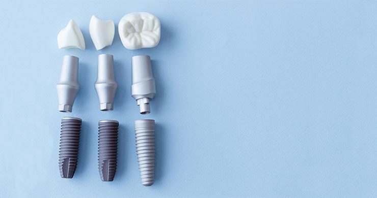 Impianti dentali: come si compongono e quante tipologie ne esistono?